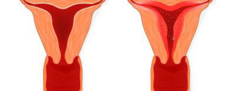 penebalan dinding rahim pada wanita