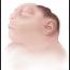 Hamil Bayi Anenchepalus