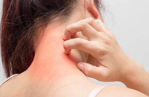 Mengenal Alergi dan Gejala Yang Muncul